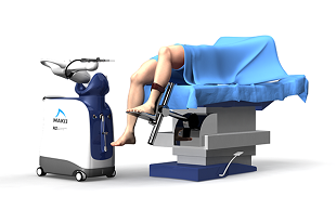 Robotic Assisted Knee Replacement